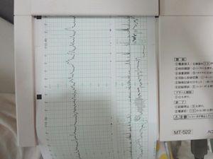 NST検査 ノンストレステスト